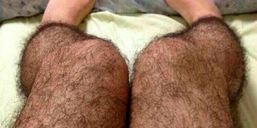 У Вас волосатые ноги?